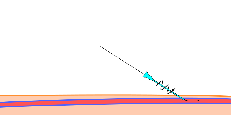 The insertion site is enlarged by using blade or dilator. Here a dilator is shown