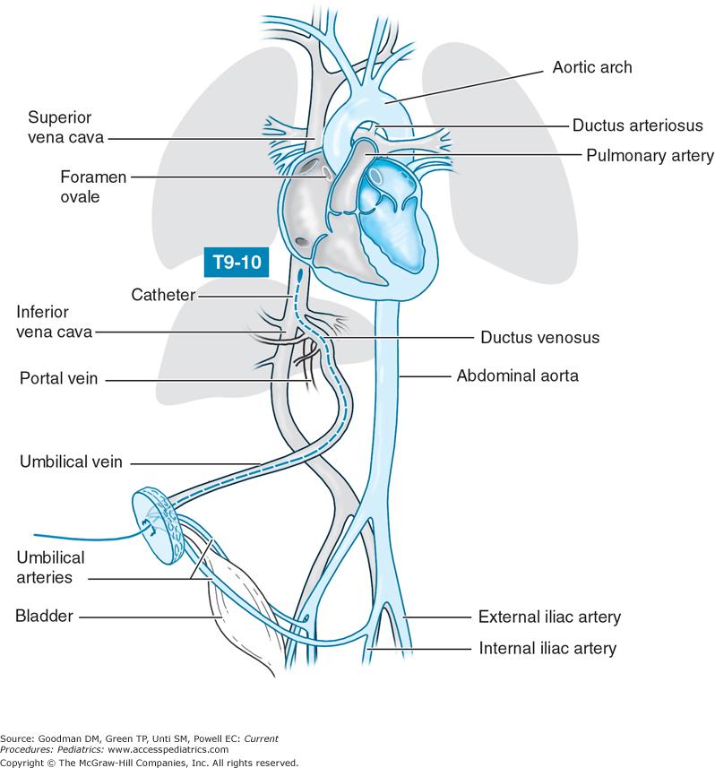 Umbilical Vein Catheter