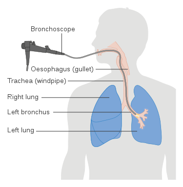 bronchoscopy is done for bronchoalveolar lavage