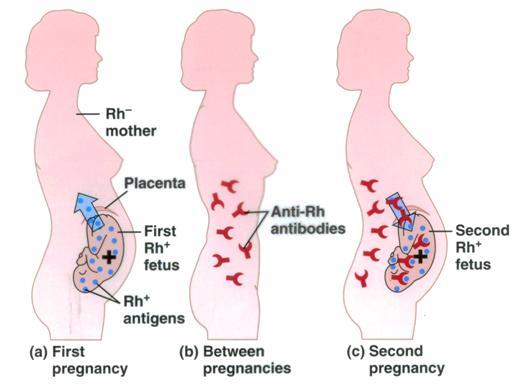 Rh immune globin