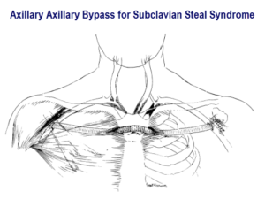 Axillary Axillary bypass for subclavican steal syndrome