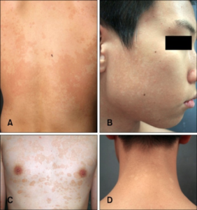 tinea versicolor on the back and face