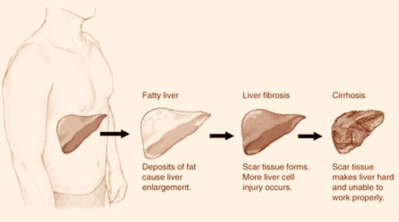 Liver fibrosis and other liver damages