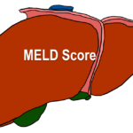 MELD score for liver ailments