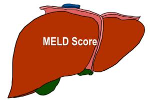 MELD score for liver ailments
