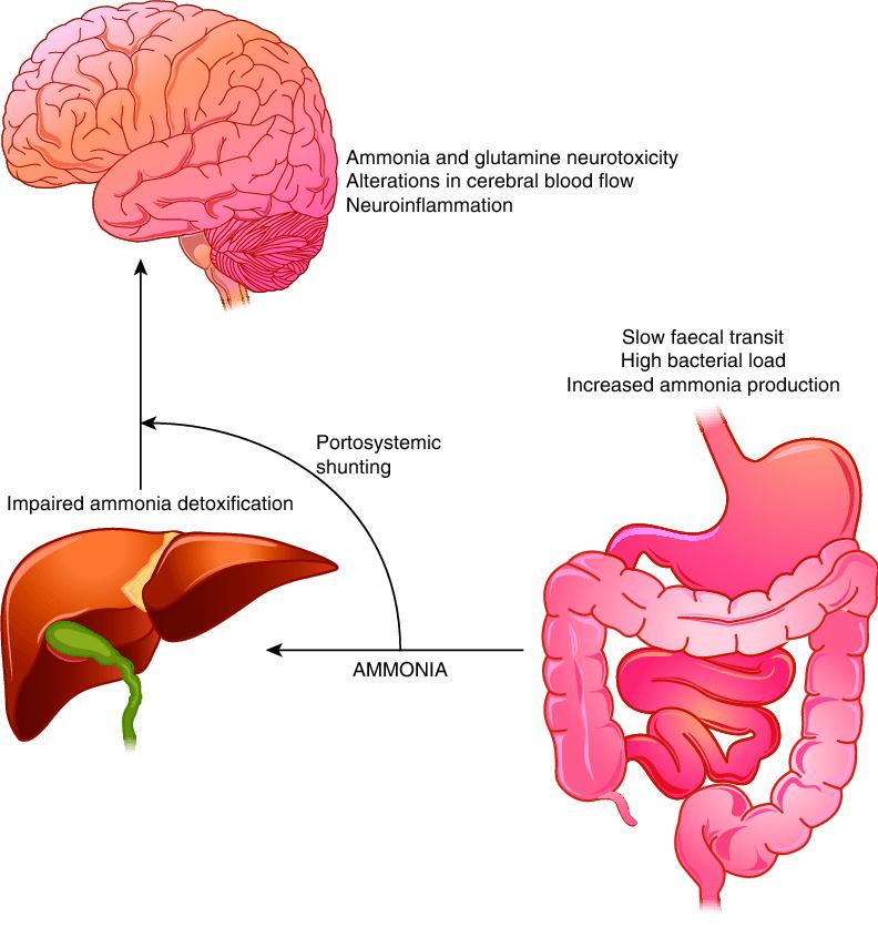 Pathogenesis of hepatic encephalopathy