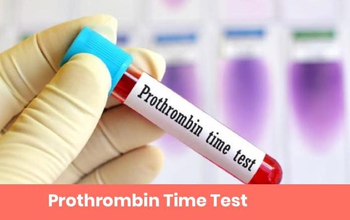 Prothrombin Time