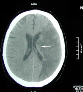 cerebral edema