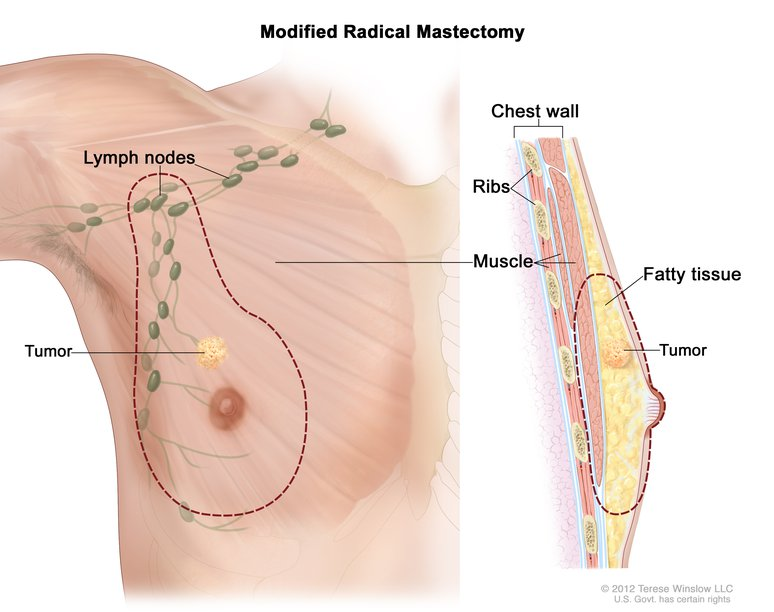 male breast cancer surgery