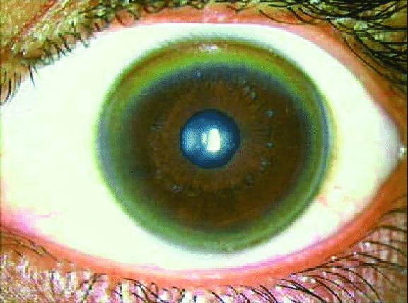 The-Kayser-Fleischer-ring in Wilson Disease