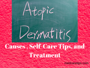 Atopic Dermatitis: Causes, Self-care Tips and Treatment 3