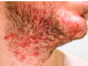 seborrheic dermatitis in beard region