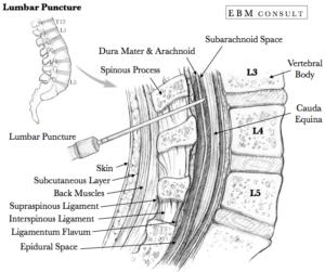 lumbar procedure