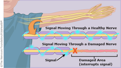 guillain-barre-syndrome mechanism